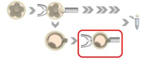 ГравитаДиагностик | Взятие клеточного материала